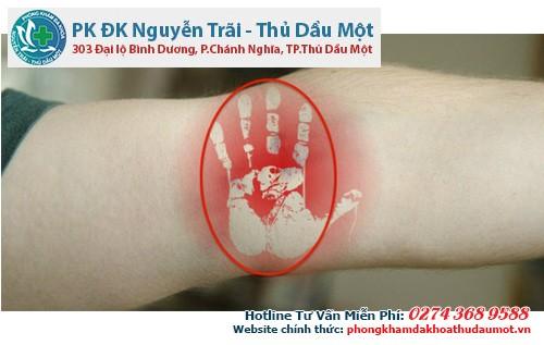 Vỗ mặt trong khuỷu tay: bài xuất độc tố và hỏa khí ở tim phổi.