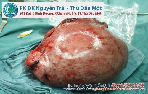Phương pháp điều trị u xơ tử cung tại Thủ Dầu Một - Bình Dương