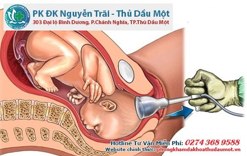 nao hut thai