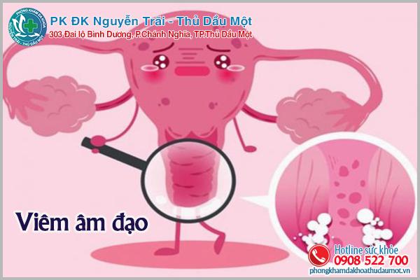 Lưu ý hiện tượng viêm âm đạo ở nữ