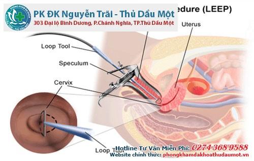 Phương pháp dao LEEP chính là cách chữa viêm lộ tuyến cổ tử cung