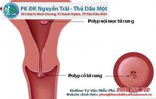 Tìm hiểu về bệnh polyp cổ tử cung