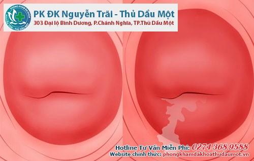 Nhiều chị em mắc viêm lộ tuyến cổ tử cung bẩm sinh mà không biết